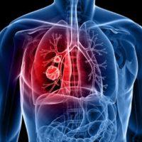 Cardio Thoracic