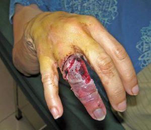 Akaisha's finger injury